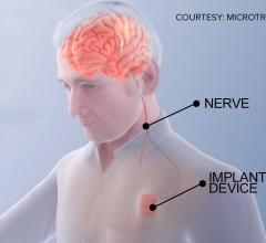 The Vivistim device is similar to a pacemaker, which uses leads to electrically stimulate the brain. A new clinical trial at The Ohio State University Wexner Medical Center is examining use of this device for stroke rehabilitation.