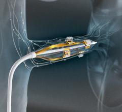 Boston Scientific Vessix Renal Denervation System Hypertension Therapies