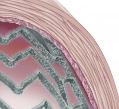 Drug-eluting Balloon Angioplasty Clinical Study Trial Diabetes Restenosis