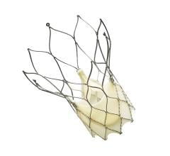 Portico Transcatheter Aortic Valve Successfully Reduces Severe Aortic Stenosis at One Year