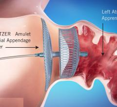 The Abbott Amplatzer Amulet left atrial appendage (LAA) transcatheter occlusion device. It received FDA clearance in August 2021. #LAA