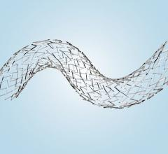 Abre venous self-expanding stent found safe, effective in treating challenging deep venous lesions was approved by the FDA.