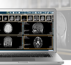 merge iconnect access 5.0 rsna 2013 remote viewing system