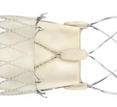 Boston Scientific Makes a Comeback With Positive Clinical Data With its Second Iteration Acurate neo2 TAVR Valve