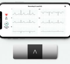 FDA Clears AliveCor's KardiaMobile 6L as First Six-Lead Personal ECG Device
