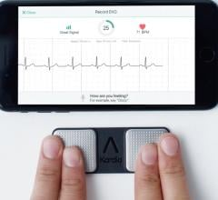 Alivecor's pocket ECG system allows consumers or cardiologists to record a single lead ECG. AI algorithms can determine if their ECG is normal or abnormal and identify the arrhythmia.
