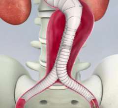 aorfix, lombard medical, EVAR,