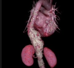 Oxford clinical study, American Heart Association, abdominal aortic aneurism