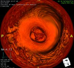Low Mortality and Stroke Risks Displayed for Minimally Invasive Aortic Valve Replacements
