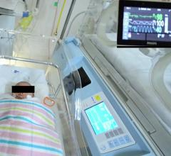 A team at the University of South Australia designed a computer vision system that can automatically detect a baby's face in a hospital bed and remotely monitor its vital signs from a digital camera with the same accuracy as a traditional ECG machine.