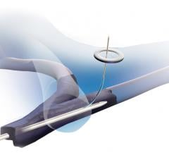 The Bluegrass Vascular Surfacer System is designed to reliably, efficiently and repeatedly gain central venous access by inserting the Surfacer System through the right femoral vein and navigating it up through the patient's venous system with an exit point in the right internal jugular vein, the optimal location for placing a central venous catheter.