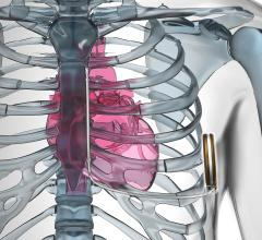 Emblem Subcutaneous ICD Safe and Effective for Majority of Patients