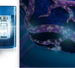 Boston Scientific's TheraSphere Y-90 Glass Microspheres enable selective internal radiation therapy (SIRT), or radioembolization, for hepatocellular carcinoma. This treats liver cancer with low toxicity using millions of microscopic glass beads containing radioactive yttrium (Y-90), delivered directly to liver tumors via catheter. The result in minimal radiation exposure to surrounding healthy tissue.