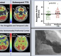 Researchers found a relationship between stress-associated neurobiological activity on 18F-FDG PET-CT imaging and risk for subsequent Takotsubo syndrome impacting the heart.