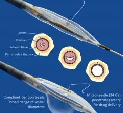 Mercator MedSystems Announces First Enrollment in TANGO Trial for Below-the-Knee Vascular Disease