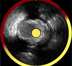 COLOR trial, TCT, NIRS, stenting vulnerable plaques, near infrared spectroscopy