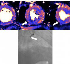 MRI scan of heart damaged by COVID, which can cause myocarditis, infarction and/or ischemia. Blue means reduced blood flow, orange is good blood flow. In this figure the inferior part of the heart shows dark blue, so the myocardial blood flow is very reduced. The angiogram shows the coronary artery which supplies the blood to this part of the heart is occluded. The three colored MRI images show different slices of the heart — the basal mid and apical slices. Image courtesy of European Heart Journal