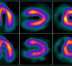 Cardiac Hybrid Imaging an Effective Tool for Predicting Heart Attacks