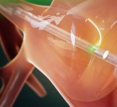 CardioFocus Announces Results From HeartLight X3 Ablation System Pivotal Study