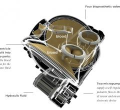 The Carmat system, an experimental artificial heart includes an autoregulation control mechanism, or Auto-Mode, that can adjust to the changing needs of patients treated for end-stage heart failure. Outcomes in the first series of patients managed with the new heart replacement pump in Auto-Mode are presented in the journal of the American Society for Artificial Internal Organs (ASAIO).