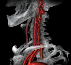 A carotid artery atherosclerotic plaque blockage at the bifurcation seen here can cause strokes. The stenting these lesions is a less invasive way of treating than open vessel surgery. The SVS has issued guidelines to help guide credentialing for the carotid stent procedure. Image from Vital Images.
