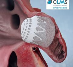 The Conformal Medical CLAAS device, a next-generation transcatheter left atrial appendage (LAA) closure occluder for patients with atrial fibrillation (AF). LAA occlusion allows AFib patients to go off of life-long anticoagulation therapy. #LAA #LAAC