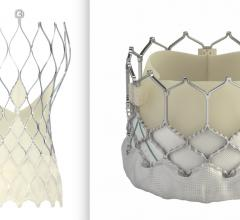 Medtronicis starting a randomized, head-to-head study comparing the Medtronic CoreValve Evolut Pro and Pro+TAVR Systems against the balloon-expandable Edwards Sapien 3 and Sapien 3 Ultra Transcatheter Heart Valvestwo transcatheter aortic valve replacement (TAVR) systems in patients with severe symptomatic aortic stenosis (ssAS).