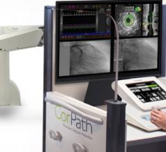 FDA Clears Corindus CorPath GRX for Peripheral Vascular Interventions