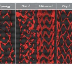 Comparison showing platelet adhesion to the surface of various coronary artery drug-eluting stents (DES) in a preclinical study that used aspirin only. Abbott said the Xience stent's fluoropolymer is significantly more anti-thrombotic than other DES.[2]