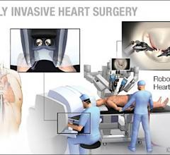 Mayo Clinic uses the Da Vinci surgical robot to perform minimally invasive mitral valve surgeries.