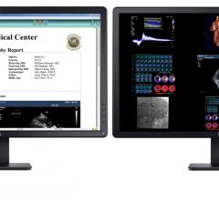 Digisonics cardiovascular information system (CVIS) can be used to aid remote image and report access to reduce in-person staff interaction to aid COVID-19 containment efforts.