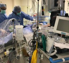 LivaNova Modifies its ECMO Indications Beyond Six Hours to Address COVID-19. The FDA expanded the use indications for ECMO systems April 6 so tthey can be used beyond six hours and for use in COVID-19 patients in need of circulatory and pulmonary support.