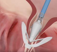 Edwards Announces Research Milestones for Pascal Transcatheter Mitral Valve Program