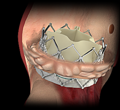 TAVR Cost-Effective Compared With SAVR in Intermediate-Risk Aortic Stenosis Patients