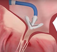 Edwards Lifesciences Pascal Tricuspid Valve Transcatheter Repair System Approved in Europe