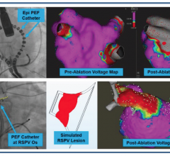 First-in-human Electroporation Ablation Study Finds Pulsed Electric Fields Can Target Specific Tissue For Atrial Fibrillation. #HRS2018 #HRS18