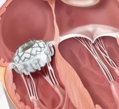 The 30-day outcomes from the TRISCEND study of the transfemoral Evoque tricuspid valve replacement system demonstrated technical feasibility and an acceptable safety profile, along with improvements in tricuspid regurgitation (TR) and symptoms in patients with clinically significant TR.