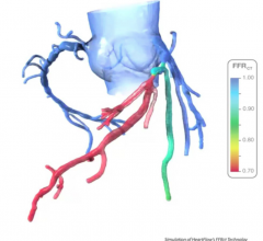 An example of HeartFlow's FFR-CT analysis of blockage severity in a patient's coronary vessels based on a cardiac CT scan.
