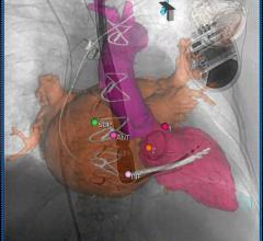 Figure 1: Segmentation performed on the left atrium, left ventricle and mitral bioprosthesis. Landmarks are placed on the site of optimal transseptal access into the left atrium and the mitral PVL.