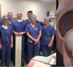 The heart team at St. James University Hospital Dublin was the first to perform a human implant of the CroiValve Duo Tricuspid Coaptation Valve technology for tricuspid repair.