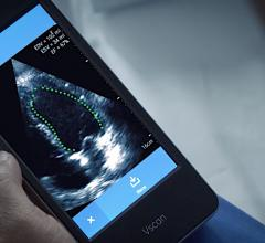 GE Healthcare Vscan with artificial intelligence (AI) automated left ventricular ejection fraction assessment with the Dia LVivo EF app. #ASE2020
