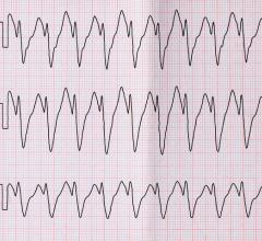 ECG with paroxysm correct form of atrial flutter. Getty Images