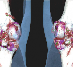 Trial for Gout Drug Meets Primary Endpoint, Raises Safety Concerns, image shows a CT scan showing gout in the knees.
