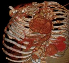 Heart with Aorta