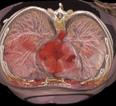 Heart failure VICTORIA TrIal a success. Dave Fornell
