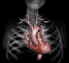 Carotid Artery MRI Improves Cardiovascular Disease Risk Assessment