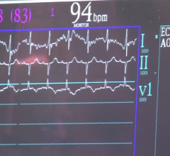 iRhythm and Stanford Researchers Develop Deep Learning-Based Cardiac Arrhthymia Detection Algorithm