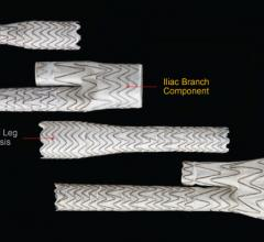 Gore Medical, Excluder Iliac Branch Endoprosthesis, FDA approval