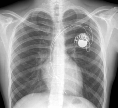 The new ACC Electrophysiology (EP) Device Implant Registry, part of the National Cardiovascular Data Registry (NCDR) will include data on implantable cardioverter defibrillator (ICD) and cardiac resynchronization therapy defibrillator (CRT-D) procedures previously captured in the NCDR ICD Registry, as well as provide the flexibility to capture novel pacemaker procedures. The registry is aligned with the ACC's Electrophysiology Accreditation program, fully supporting the program's data requirements.