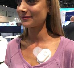 An example of the new generation of inexpensive, wearable cardiac monitors. This is the Cardea Solo device. #ACC18